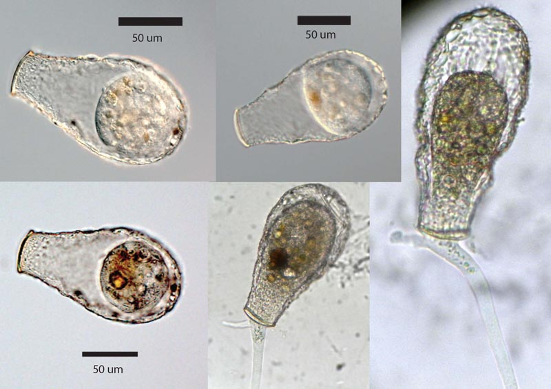 Nebela_sp_Light_Microscopy.jpg